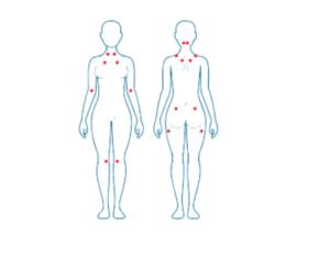 Fibromialgia y alteración cognitiva